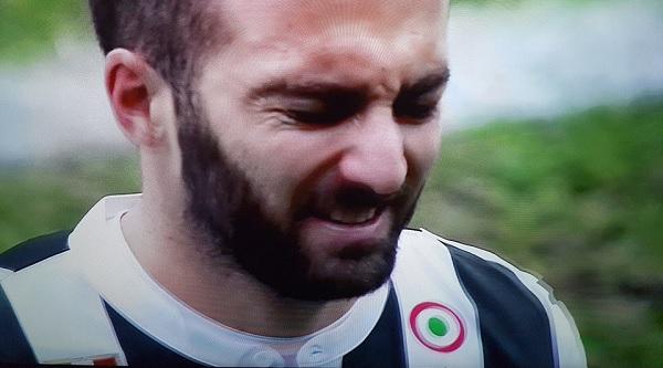 Juventus, la situazione degli infortuni di Higuaín e Bernardeschi